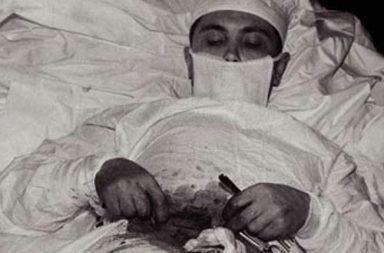 Dr. Leonid Rogozov operating himself to remove his appendix in Antarctica, 1961