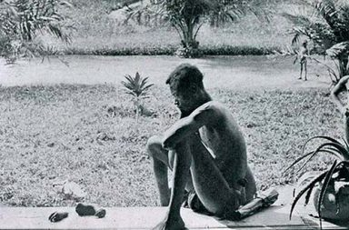 Father stares at the severed hand and foot of his five-year-old, severed as a punishment for failing to make the daily rubber quota, Belgian Congo, 1904