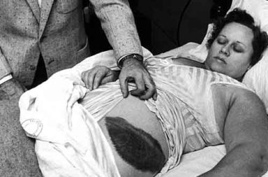 Ann Hodges shows off her bruise after being hit by a meteorite, 1954