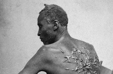 Scars of Gordon, a whipped Louisiana slave, 1863